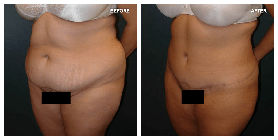 Abdominoplasty and Liposuction, female, age not given, 13 months after surgery by Kenneth Shestak, MD