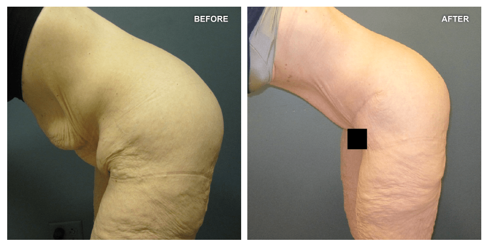 Abdominoplasty, female, age 37, 3 months after surgery by Jeffrey Gusenoff, MD