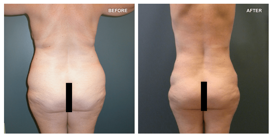 Abdominoplasty, female, age 48, 2 years after surgery by Jeffrey Gusenoff, MD