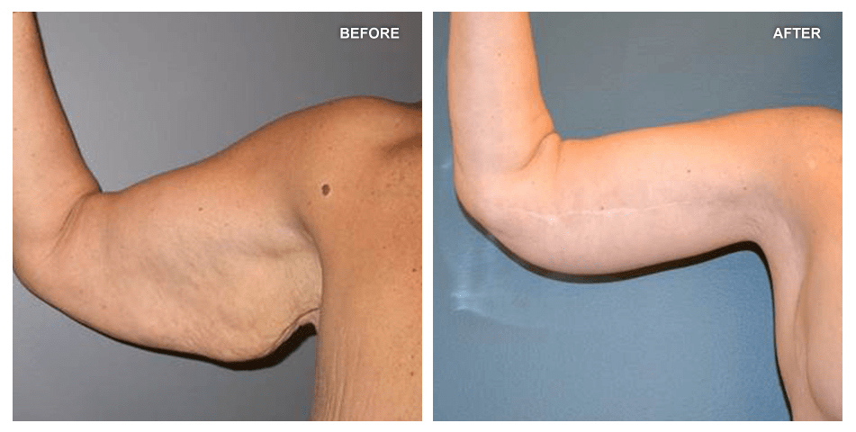 Brachioplasty, female, age 51, 3 years after surgery by J. Peter Rubin, MD