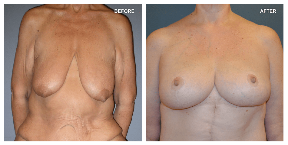 Breast lift, female, age 51, 7 years after surgery by Jeffrey Gusenoff, MD