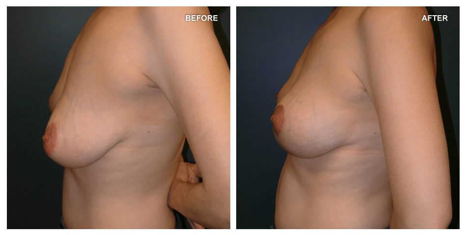 Breast lift, female, age 44, 2 years after surgery by Kenneth Shestak, MD