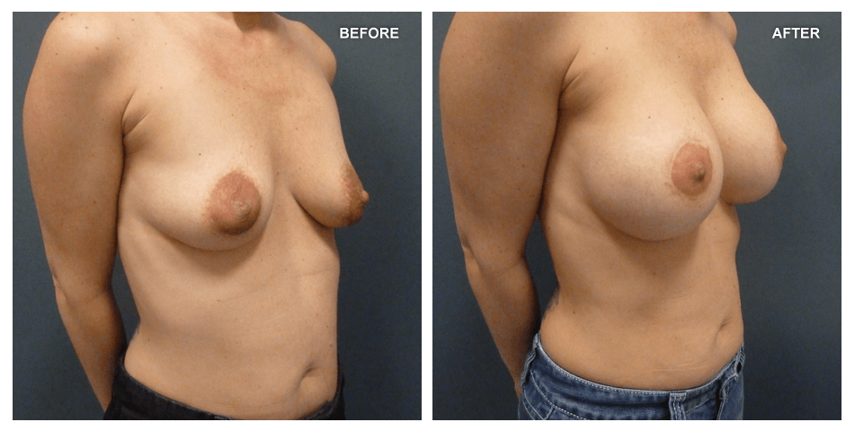 Breast Lift and Breast Augmentation, female, age 30, 6 years after surgery by Kenneth Shestak, MD
