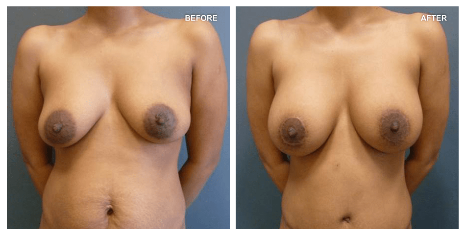 Breast lift, female, age not given, 10 months after surgery by Kenneth Shestak, MD