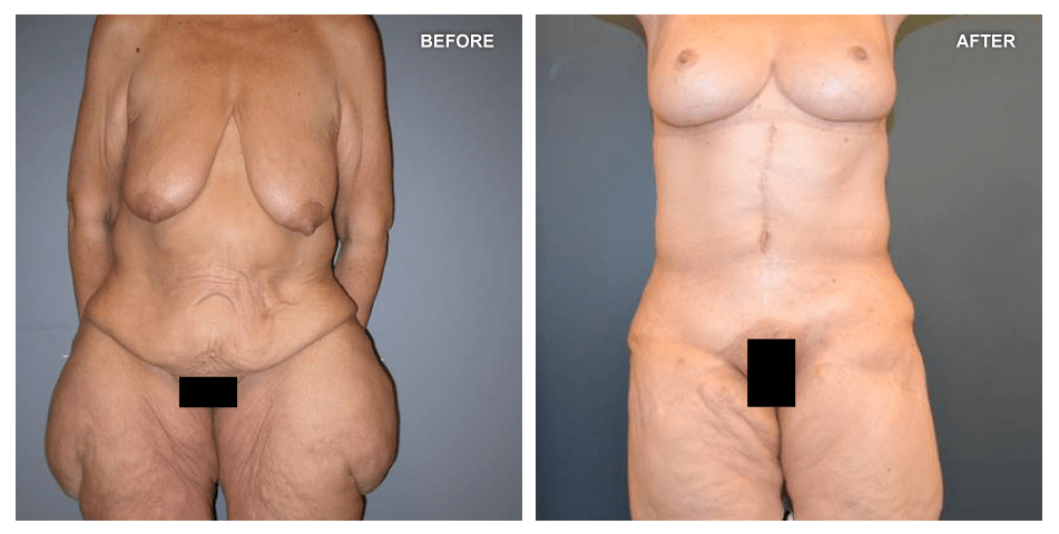 Lower Body Lift and Panniculectomy, female, age 51, 7 years after surgery by J. Peter Rubin, MD