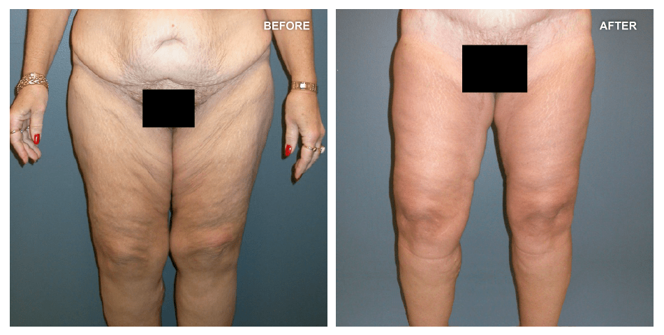 Thigh Lift and Liposuction, female, age 59, 2 years after surgery by J. Peter Rubin, MD