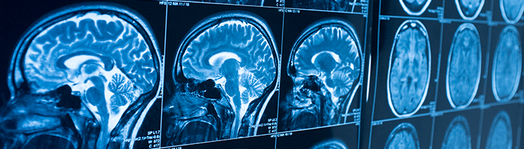 Stroke brain scans quality banner