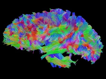 Brain fibers imaging