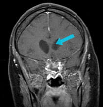 post-surgical scan of successful removal of large tumor via endoscopic endonasal approach surgery